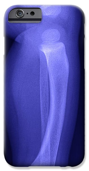 Abnormal iPhone Cases - X-ray Of Deformed Child Tibia iPhone Case by Ted Kinsman