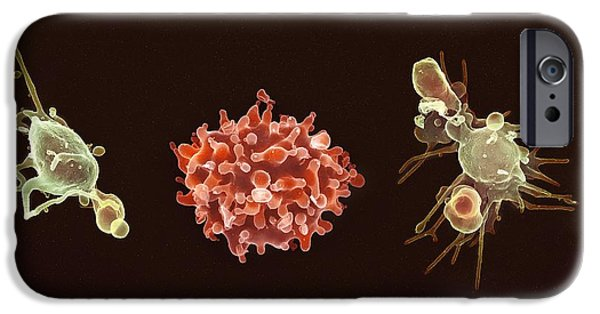 Cut-outs iPhone Cases - Activated Platelets, Sem iPhone Case by Spl
