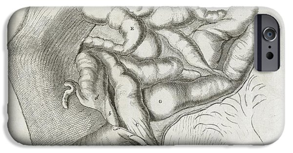 Disorder iPhone Cases - Fistula And Hernia, 18th Century iPhone Case by Middle Temple Library