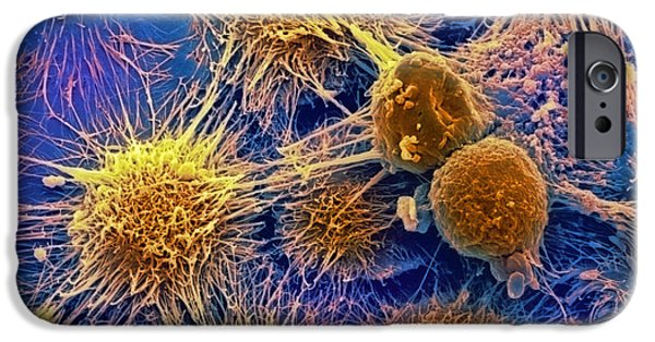 Recently Sold -  - Disorder iPhone Cases - Kidney Cancer Cells, Sem iPhone Case by David Mccarthy