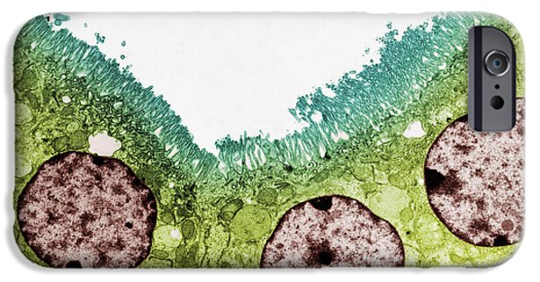 Microvillus iPhone Cases - Kidney Tubule, Tem iPhone Case by Steve Gschmeissner