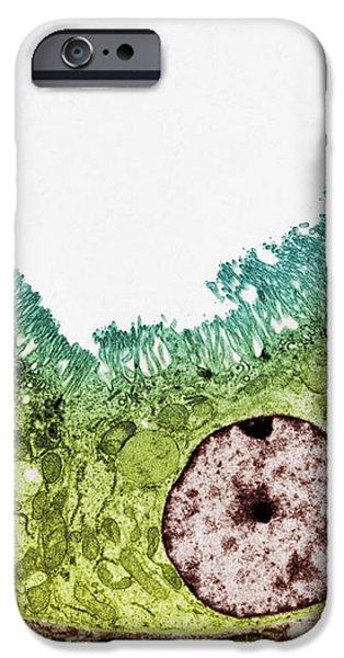 Kidney Tubule, Tem iPhone Case by Steve Gschmeissner