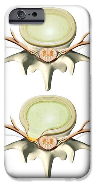 Disc iPhone Cases - Normal And Slipped Disc, Artwork iPhone Case by Claus Lunau