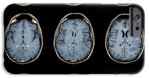 Medical Scan iPhone Cases - Normal Brain, Mri Scans iPhone Case by Zephyr