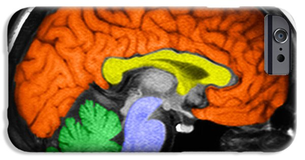 Diagnostics iPhone Cases - Human Brain iPhone Case by Ted Kinsman