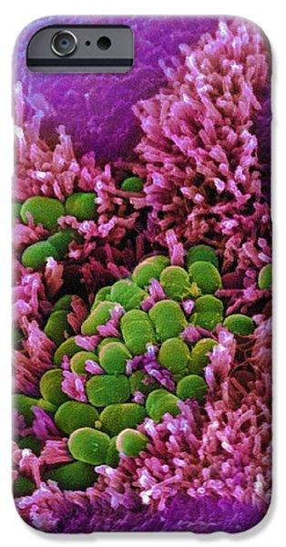 E. Coli Bacteria, Sem iPhone Case by Stephanie Schuller