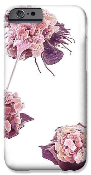 Cut-outs iPhone Cases - Activated Granulocytes, Sem iPhone Case by Steve Gschmeissner