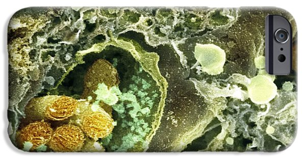 Organelle iPhone Cases - Synapse Nerve Junctions, Sem iPhone Case by Dr David Furness, Keele University