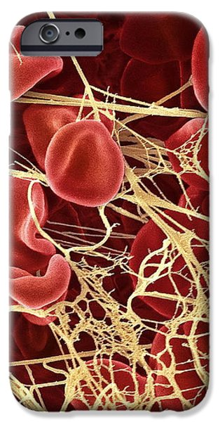 Blood Clot, Sem iPhone Case by Steve Gschmeissner