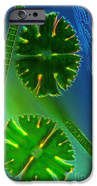 Planktonic iPhone Cases - Desmids near Sphagnum leaf LM iPhone Case by Marek Mis
