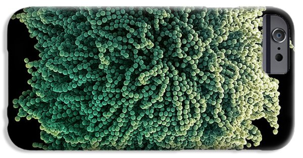 Cut-outs iPhone Cases - Fungal Spores, Sem iPhone Case by Steve Gschmeissner