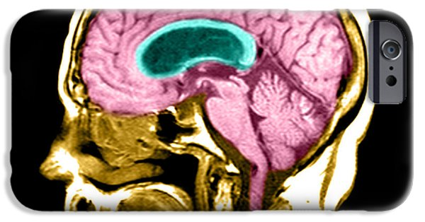 Best Sellers -  - Abnormal iPhone Cases - Hydrocephalus iPhone Case by Medical Body Scans