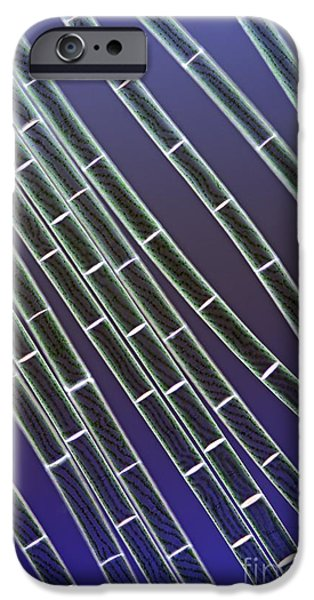 Alga iPhone Cases - Spirogyra Algae, Light Micrograph iPhone Case by Jerzy Gubernator