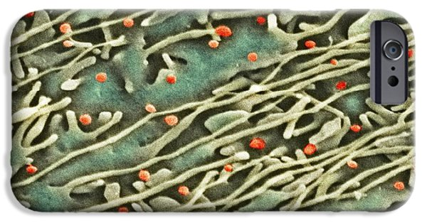 Microbiological iPhone Cases - Hepatitis C Viruses, Tem iPhone Case by Thomas Deerinck, Ncmir