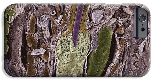 Scanning Electron Micrograph iPhone Cases - Hair Follicle, Sem iPhone Case by Steve Gschmeissner