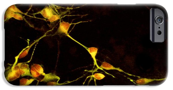 Neurons iPhone Cases - Nerve Cell Growth iPhone Case by Francois Paquet-durand