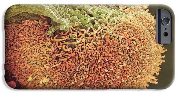 Abnormal iPhone Cases - Urine Infection, Sem iPhone Case by Steve Gschmeissner