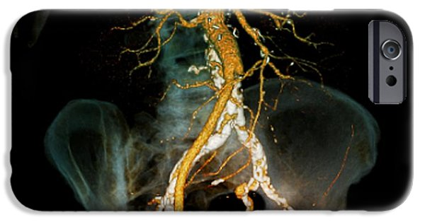 Disorder iPhone Cases - Arteritis, 3d Ct Scan iPhone Case by Zephyr