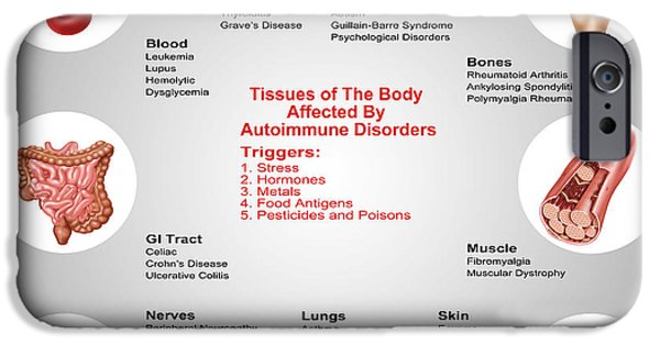 Disorder iPhone Cases - Autoimmune Disorder Effects On Tissues iPhone Case by Gwen Shockey