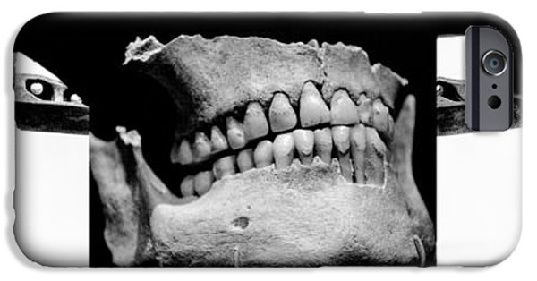 Machinery iPhone Cases - Bones And Metal Study 8 iPhone Case by Samuel Hamilton