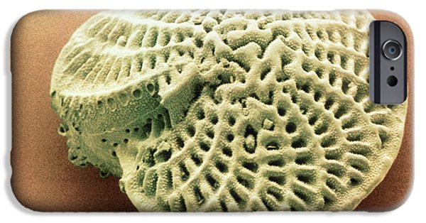 Plankton iPhone Cases - Coloured Sem Of Foraminifera Test; Elphidium Sp. iPhone Case by Power And Syred