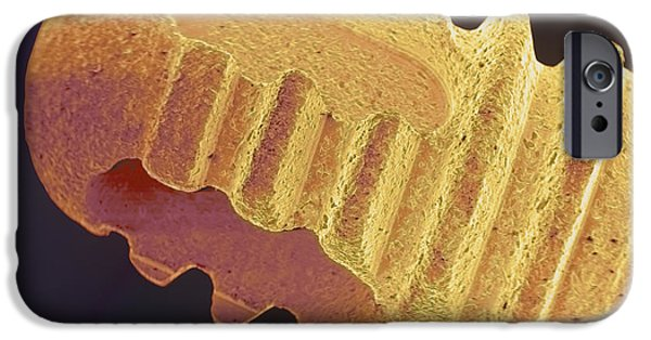 Recently Sold -  - Disorder iPhone Cases - Coloured Sem Of The Root Of A Dental Implant iPhone Case by Volker Steger
