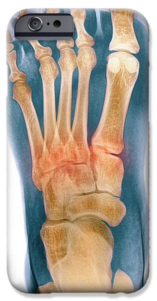 Crushed Broken Foot, X-ray iPhone Case by