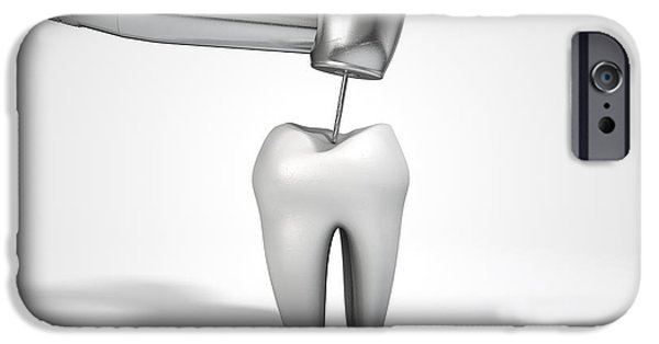 Canines Digital Art iPhone Cases - Dentists Drill And Tooth iPhone Case by Allan Swart
