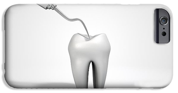 Canines Digital Art iPhone Cases - Dentists Probe Hook And Tooth iPhone Case by Allan Swart