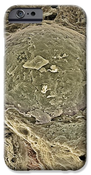 Egg Cell, Sem iPhone Case by Steve Gschmeissner