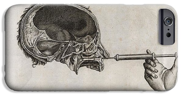 Recently Sold -  - Disorder iPhone Cases - Eustachian Tube Syringing, 18th Century iPhone Case by Middle Temple Library
