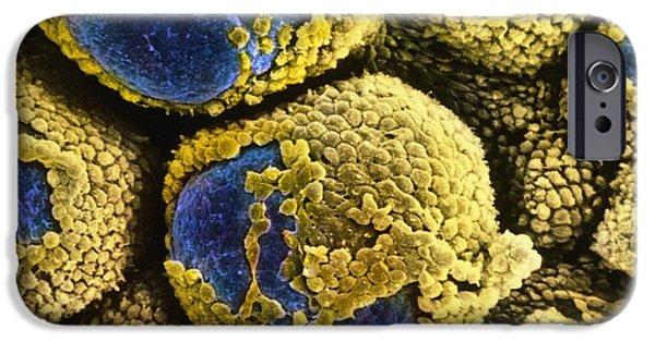 Disorder iPhone Cases - False-colour Sem Of Polycystic Ovary iPhone Case by Professors P.m. Motta & S. Makabe