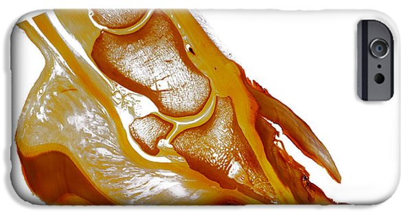 Feet Sculptures iPhone Cases - Hoof wall separation hollow wall equine anatomy 30200 iPhone Case by Christoph Von Horst