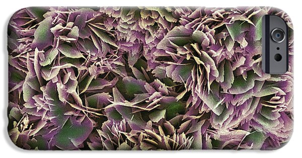 Disorder iPhone Cases - Kidney Stone Crystals, Sem iPhone Case by Steve Gschmeissner