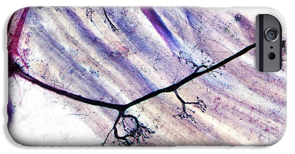 Neurons iPhone Cases - Muscle Motor Neurones, Light Micrograph iPhone Case by Dr Keith Wheeler