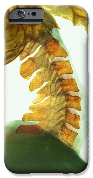 Neck Vertebrae Flexed, X-ray iPhone Case by