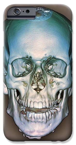 Medical Scan iPhone Cases - Normal Skull, 3d Ct Scan iPhone Case by Zephyr