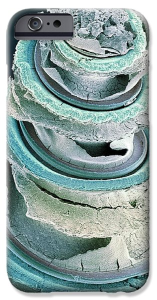 Scanning Electron Micrograph iPhone Cases - Organ Of Corti, Inner Ear, Sem iPhone Case by Dr David Furness, Keele University