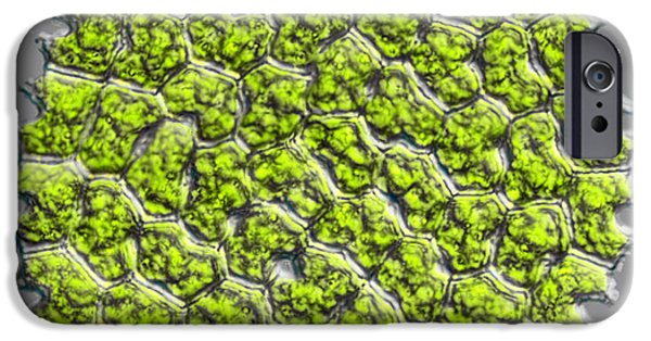 Alga iPhone Cases - Pediastrum Tetras, Dic iPhone Case by M. I. Walker