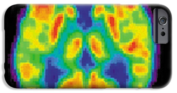 Diagnostic iPhone Cases - Pet Scan Of 20-year-old Brain iPhone Case by Science Source