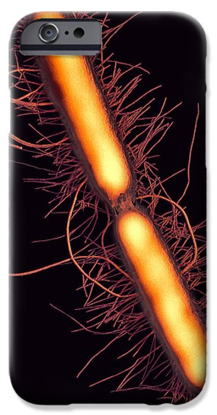 Proteus Vulgaris Bacteria, Sem iPhone Case by Thomas Deerinck, Ncmir