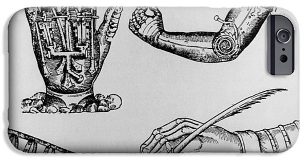 Pare iPhone Cases - Selection Of 16th Century Artificial Arms & Hands. iPhone Case by Dr Jeremy Burgess.
