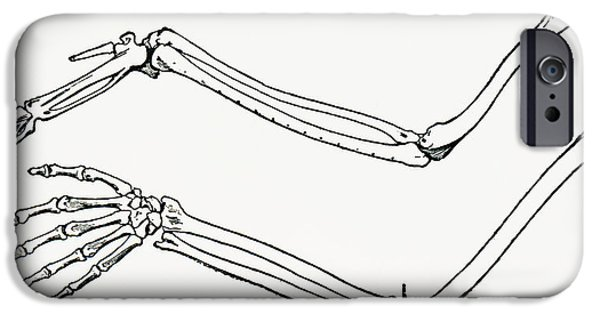 Skeleton Drawings iPhone Cases - Skeleton Of A Bird S Wing And Of A Man iPhone Case by Ken Welsh