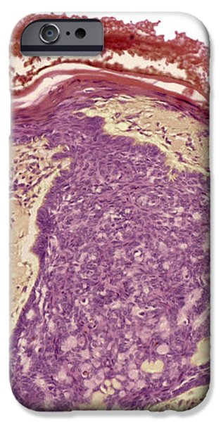 Skin Cancer, Light Micrograph iPhone Case by Steve Gschmeissner