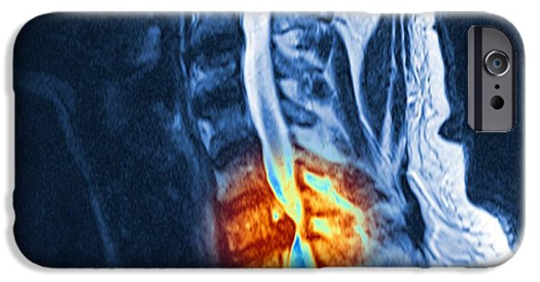 Disc iPhone Cases - Slipped Disc, Mri Scan iPhone Case by Pasieka
