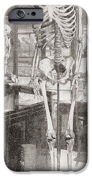 Skeleton Drawings iPhone Cases - The Skeletons Of Charles Byrne, 1761 iPhone Case by Ken Welsh