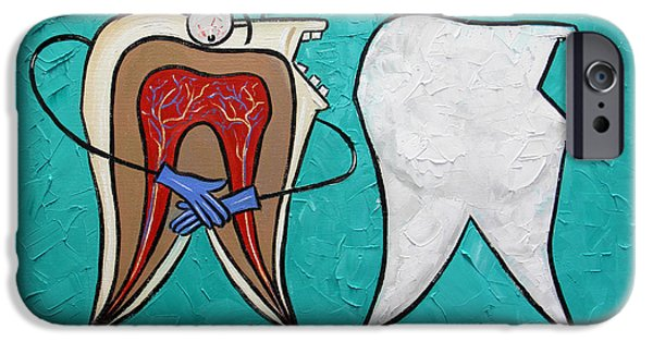 Teeth iPhone Cases - Tooth Anatomy iPhone Case by Anthony Falbo