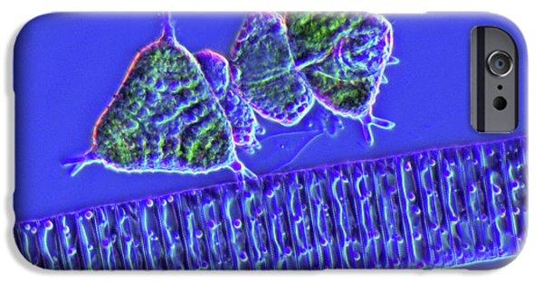 Diatoms And Desmids IPhone Case by Marek Mis