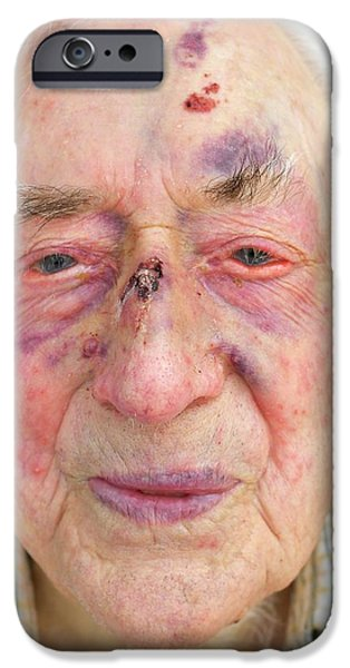 Elderly Man's Face After Fall IPhone Case by Tony Craddock