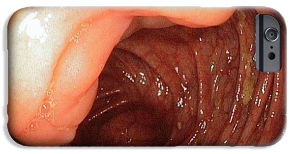 Ileocaecal Valve IPhone Case by Gastrolab